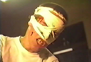 Guy with bandages all over his face grimacing in pain